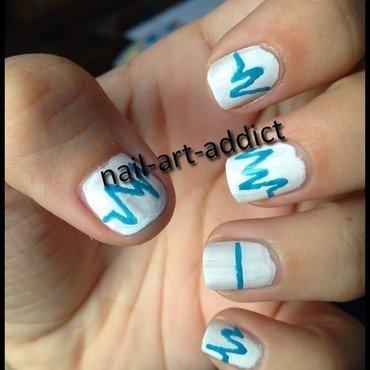 Nailstorming   infirmi res et hopital thumb370f