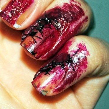 Blut1 thumb370f