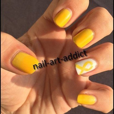 Toutes en Jaune contre l'Endométriose nail art by SowNails
