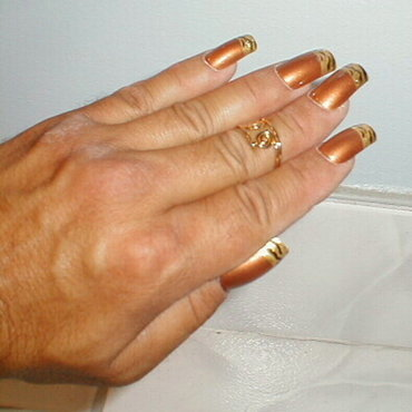 Nailsgold3 thumb370f